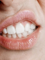 What-should-you-do-about-your-sensitive-teeth