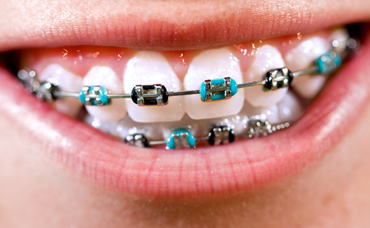 dca-blog_how-to-care-for-your-braces