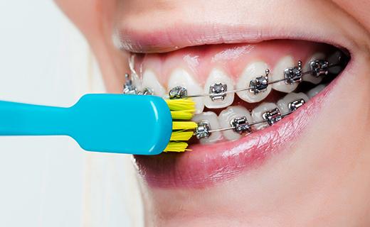dca-blog_proper-brushing-with-braces